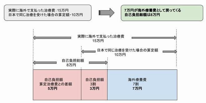 日本の国民健康保険で戻ってくる海外での治療費